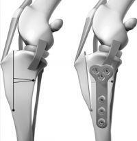 Triple tibial osteotomy TTO diagram